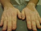 vitiligo-small